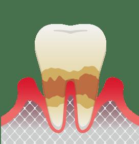 中度歯周炎