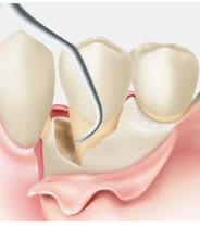 歯肉の剥離 プラーク・歯石などの除去