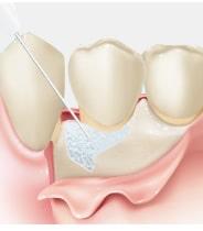 歯槽骨の欠損部にリグロスの塗布
